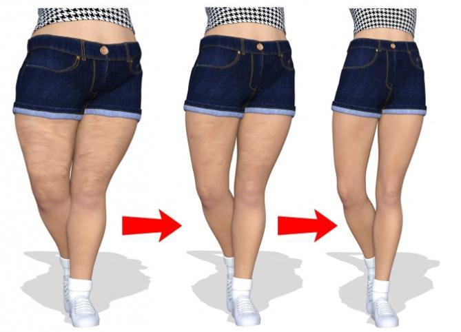 Anti-Cellulite 6