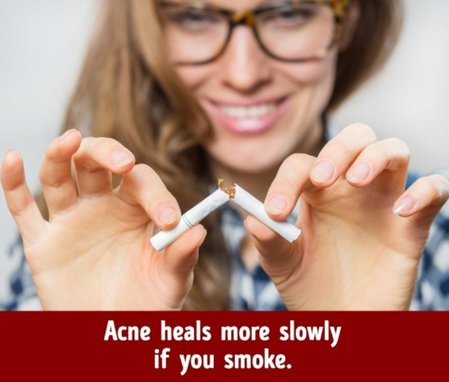 Smoking facilitates the spreading of acne
