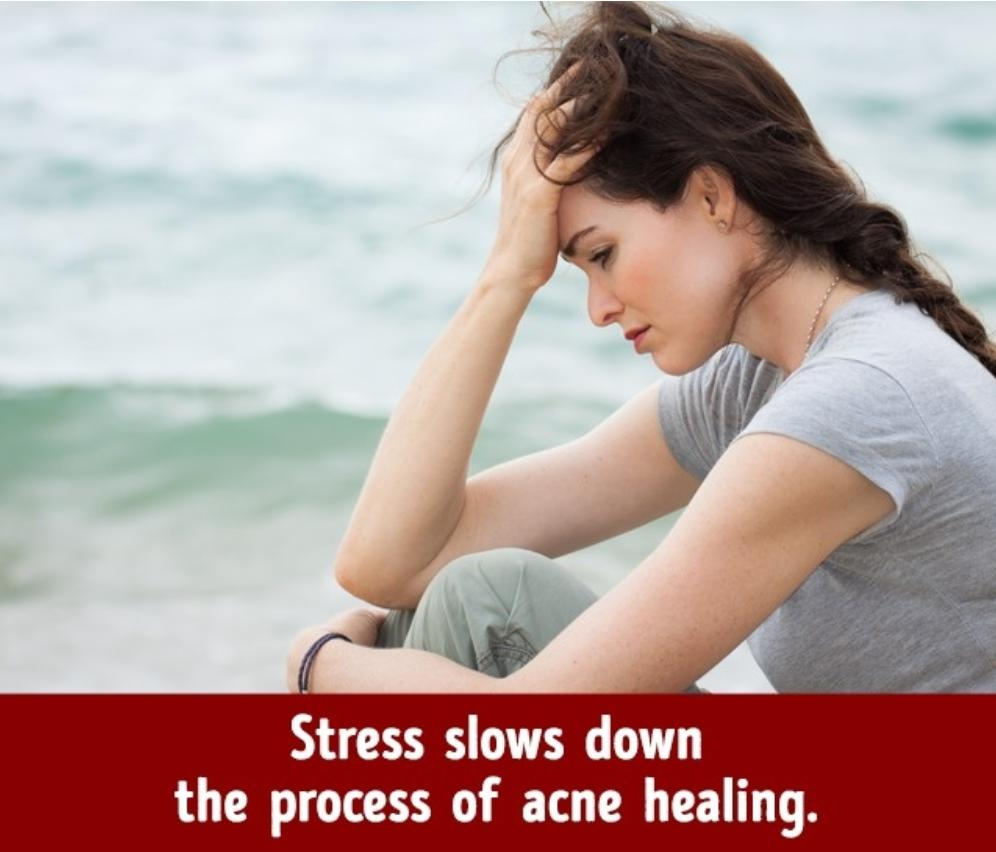 Stress causes acne