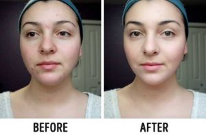 Easy Tricks to Make Your Skin Glow