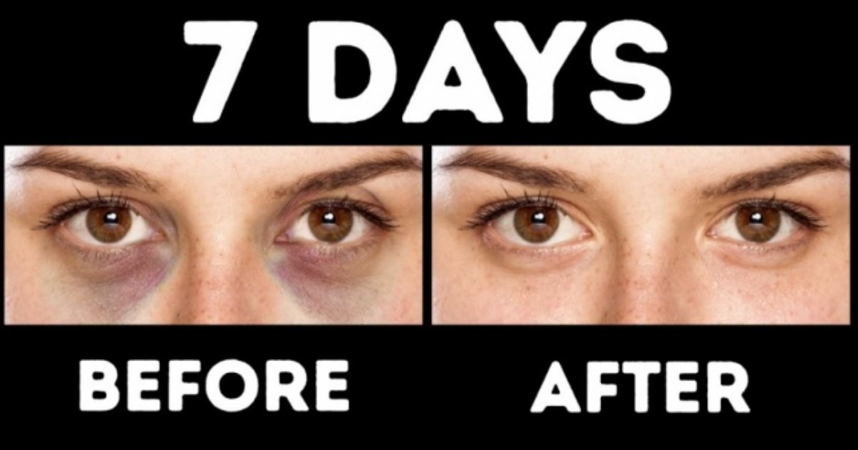 9 Natural Home Remedy to Do Away With Circles Under the Eyes