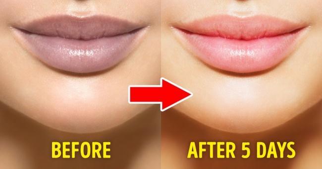 Lip remedy