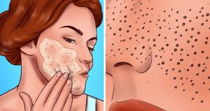 Top 5 Skincare Mistakes Why Some People Have Larger Pores than others