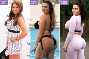 The extraordinary transforming form of Lauren Goodger's bottom